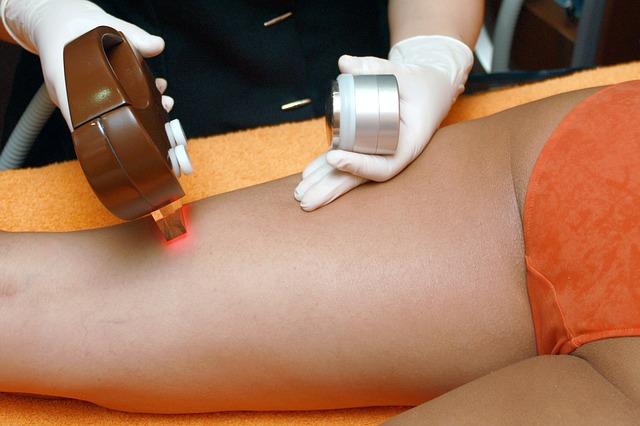 W jaki sposób depilować nogi mając żylaki?